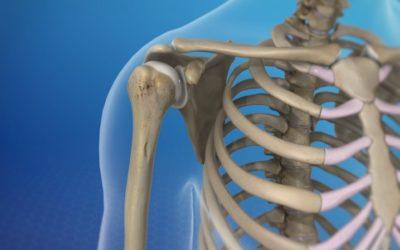 Η αποτελεσματικότητα της Φυσικοθεραπευτικής παρέμβασης στον Υπακρωμιακό Πόνο του Ώμου (ΥΠΩ)